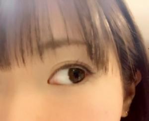 瞼のむくみ